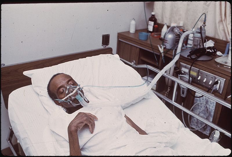 June, 1972: Ex-coal miner is now a black lung victim in Birmingham, Alabama.